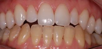 Especialidades Accorsi Ribeiro Clinica Odontologica